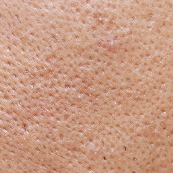 Articol despre acnee - imaginea principală